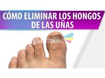 https://www.gallito.com.uy/tratamiento-hongos-de-las-uñas-de-los-pies-y-manos-100-productos-18801766